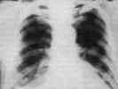 В Первоуральске покажут рентгенограммы легких известных уральцев