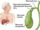 В Первоуральске у пациентки обнаружили орган, который был удален много лет назад